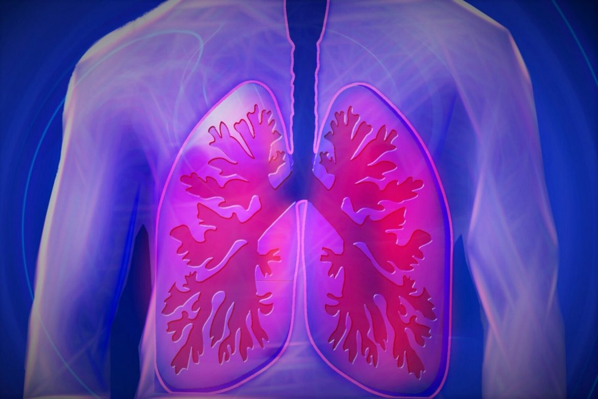 22. COPD